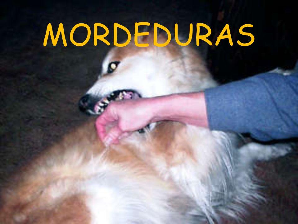 MORDEDURAS
