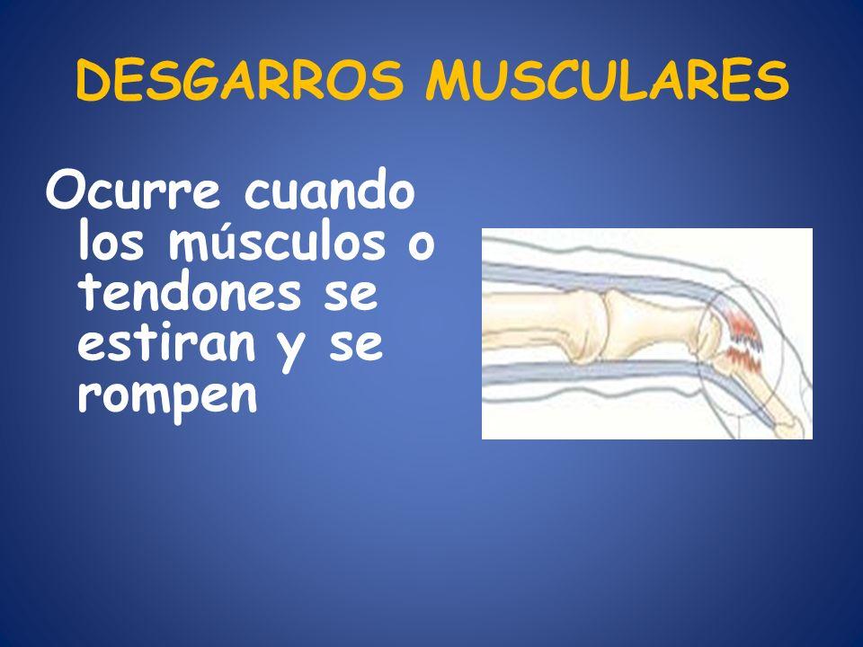 DESGARROS MUSCULARES Ocurre cuando los músculos o tendones se estiran y se rompen