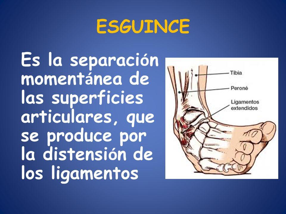 ESGUINCE Es la separación momentánea de las superficies articulares, que se produce por la distensión de los ligamentos.
