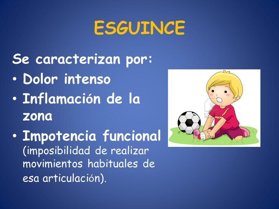 ESGUINCE Se caracterizan por: Dolor intenso Inflamación de la zona