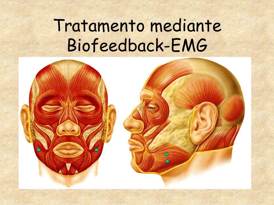 Tratamento mediante Biofeedback-EMG