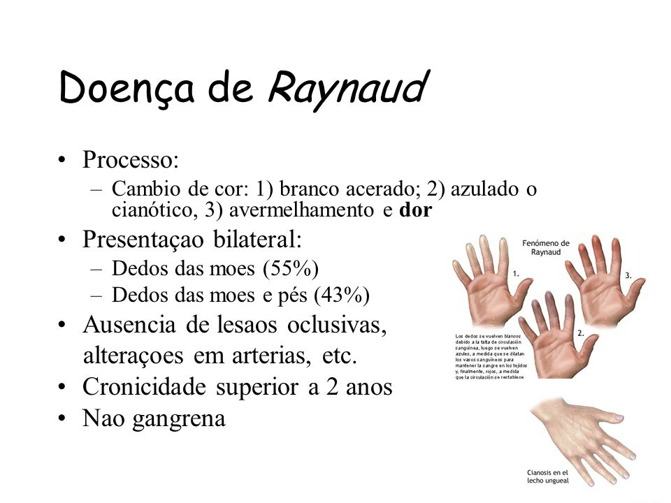 Doença de Raynaud Processo: Presentaçao bilateral: