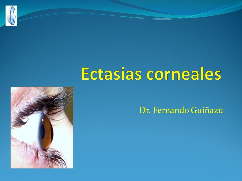 Ectasias corneales Dr. Fernando Guiñazú
