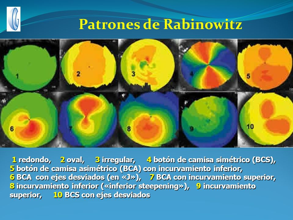 Patrones de Rabinowitz