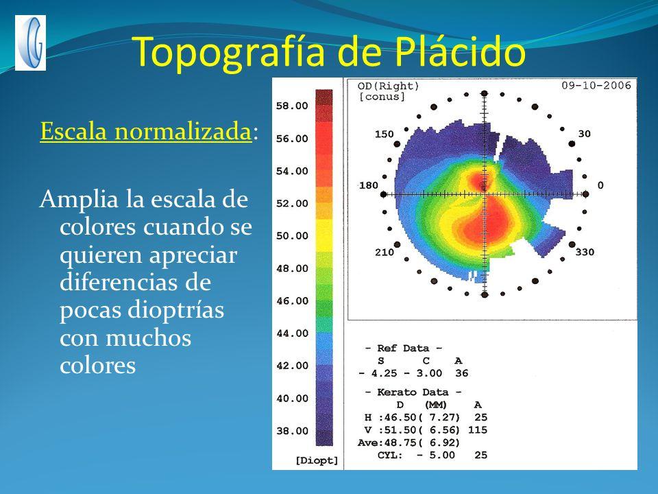Topografía de Plácido Escala normalizada: