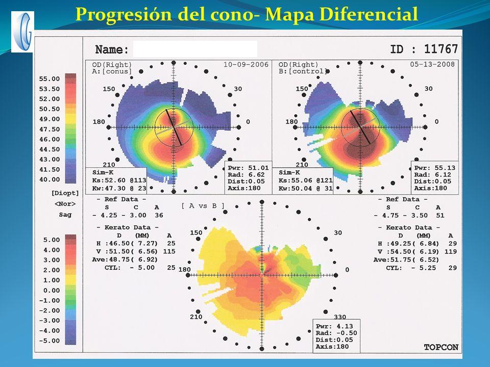 Progresión del cono- Mapa Diferencial