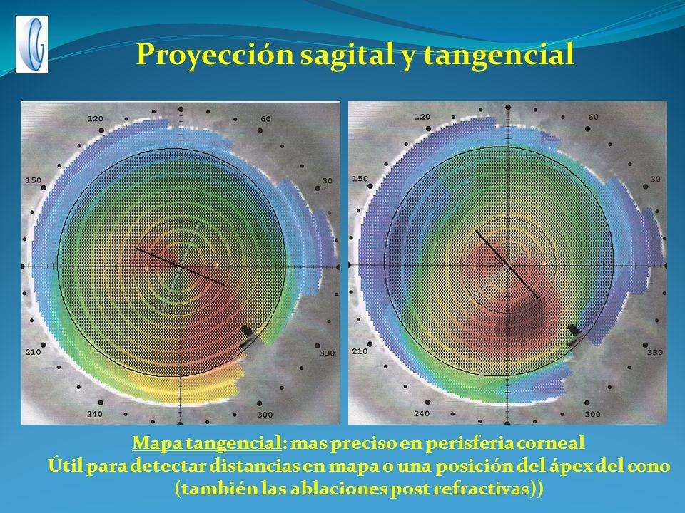 Mapa tangencial: mas preciso en perisferia corneal