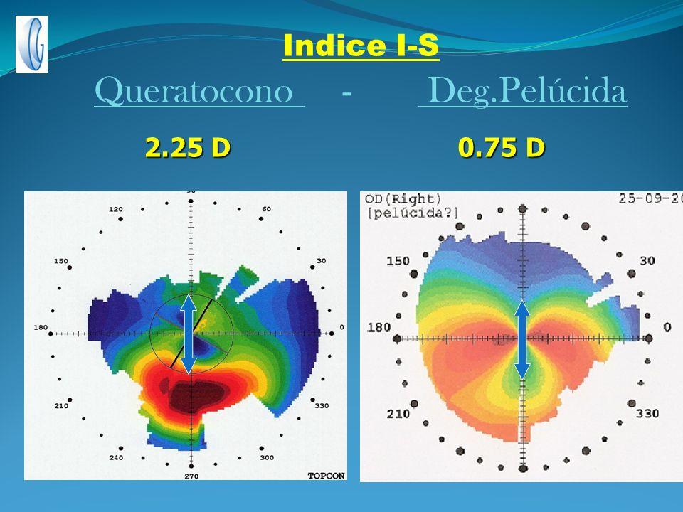Indice I-S Queratocono - Deg.Pelúcida