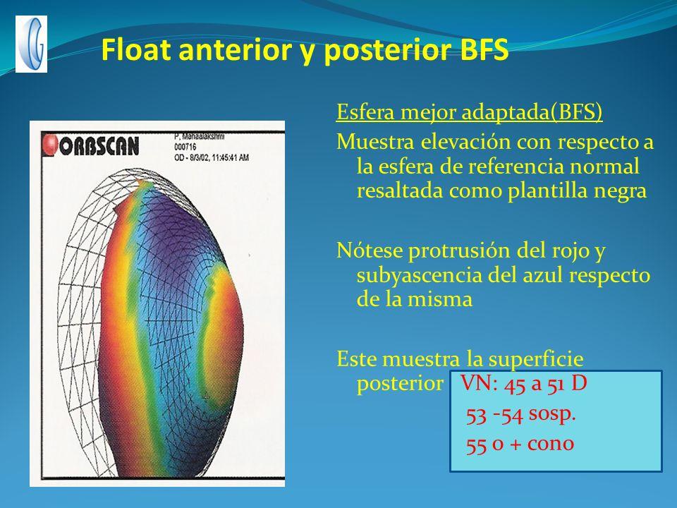 Float anterior y posterior BFS