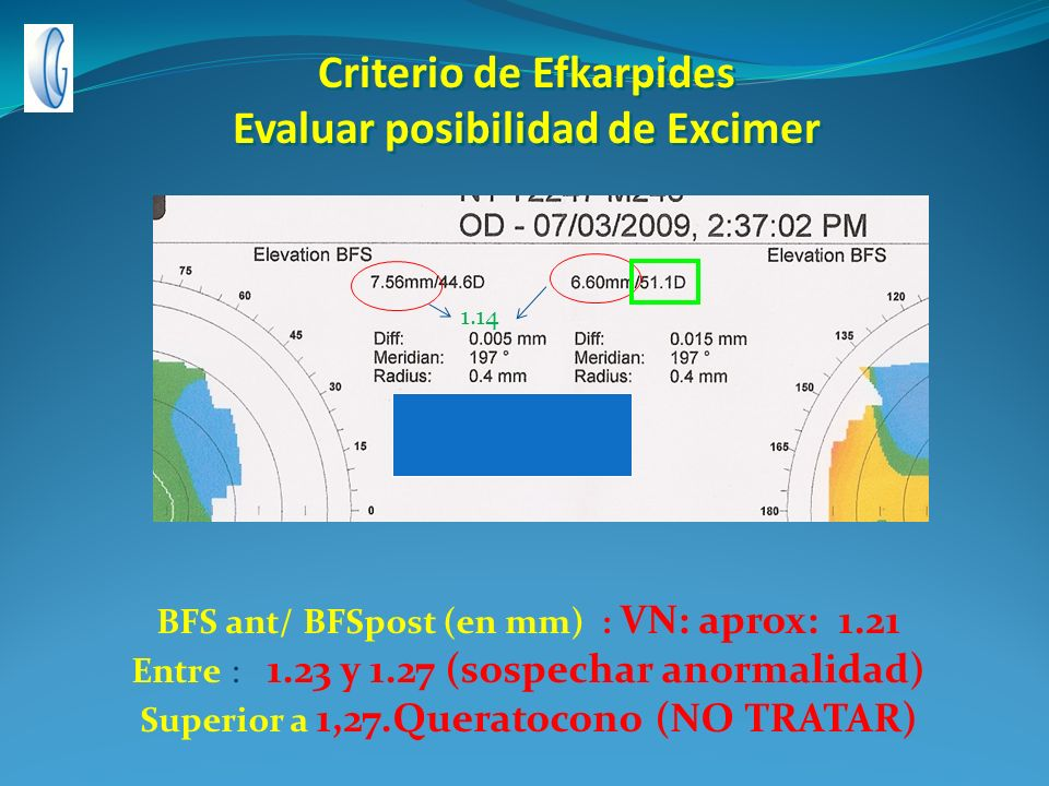 Criterio de Efkarpides Evaluar posibilidad de Excimer