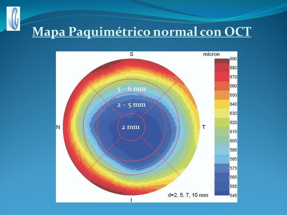 Mapa Paquimétrico normal con OCT