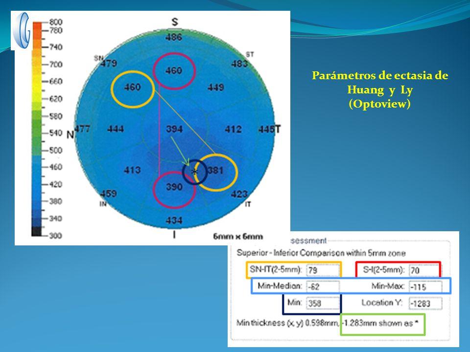 Parámetros de ectasia de Huang y Ly