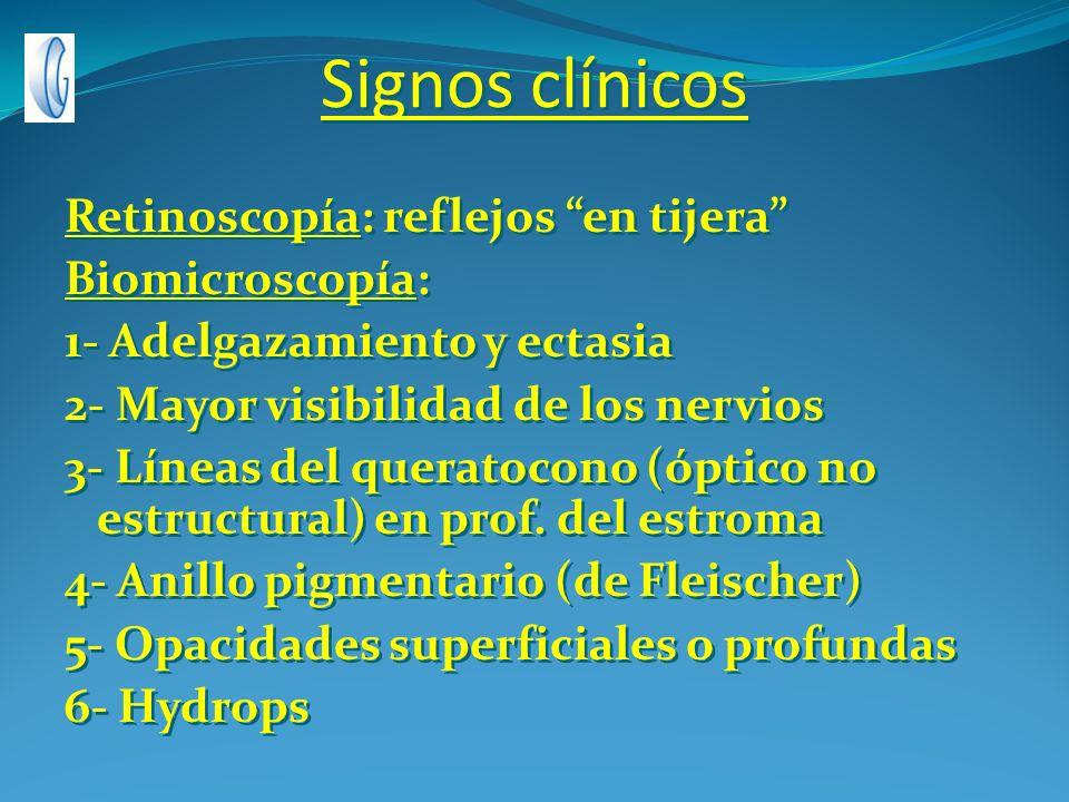 Signos clínicos Retinoscopía: reflejos en tijera Biomicroscopía: