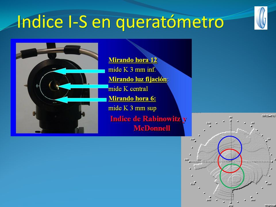 Indice I-S en queratómetro