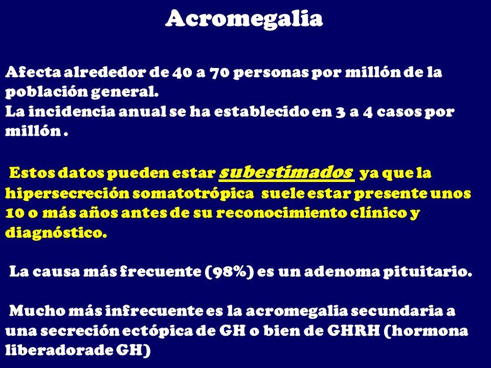 Acromegalia Afecta alrededor de 40 a 70 personas por millón de la población general.