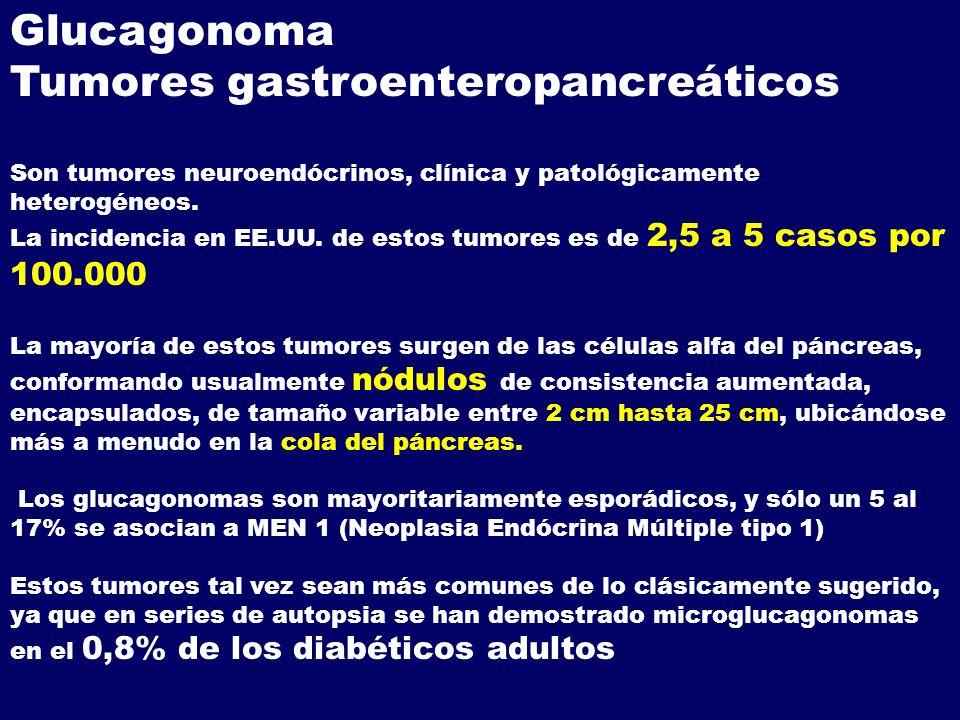 Tumores gastroenteropancreáticos