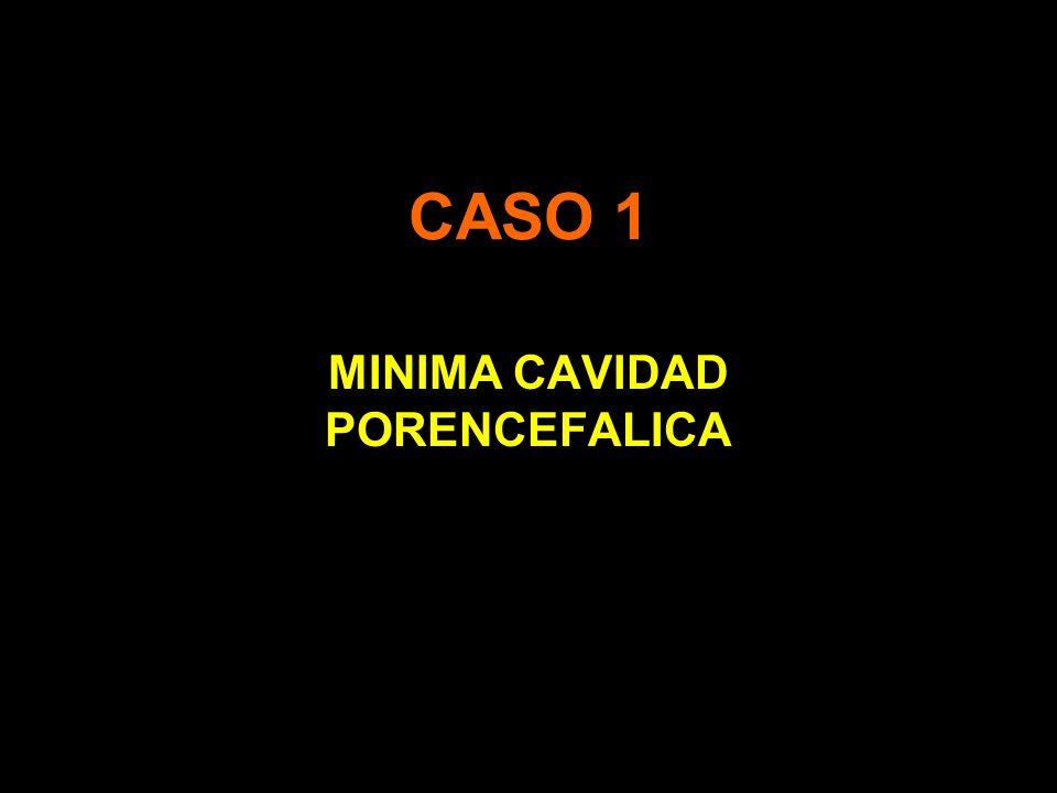 MINIMA CAVIDAD PORENCEFALICA