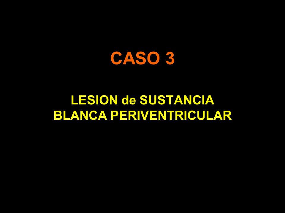 LESION de SUSTANCIA BLANCA PERIVENTRICULAR
