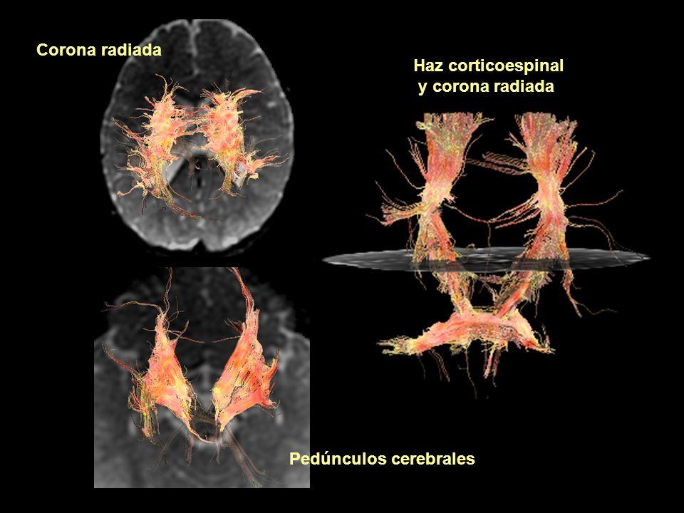 Corona radiada Haz corticoespinal y corona radiada Pedúnculos cerebrales
