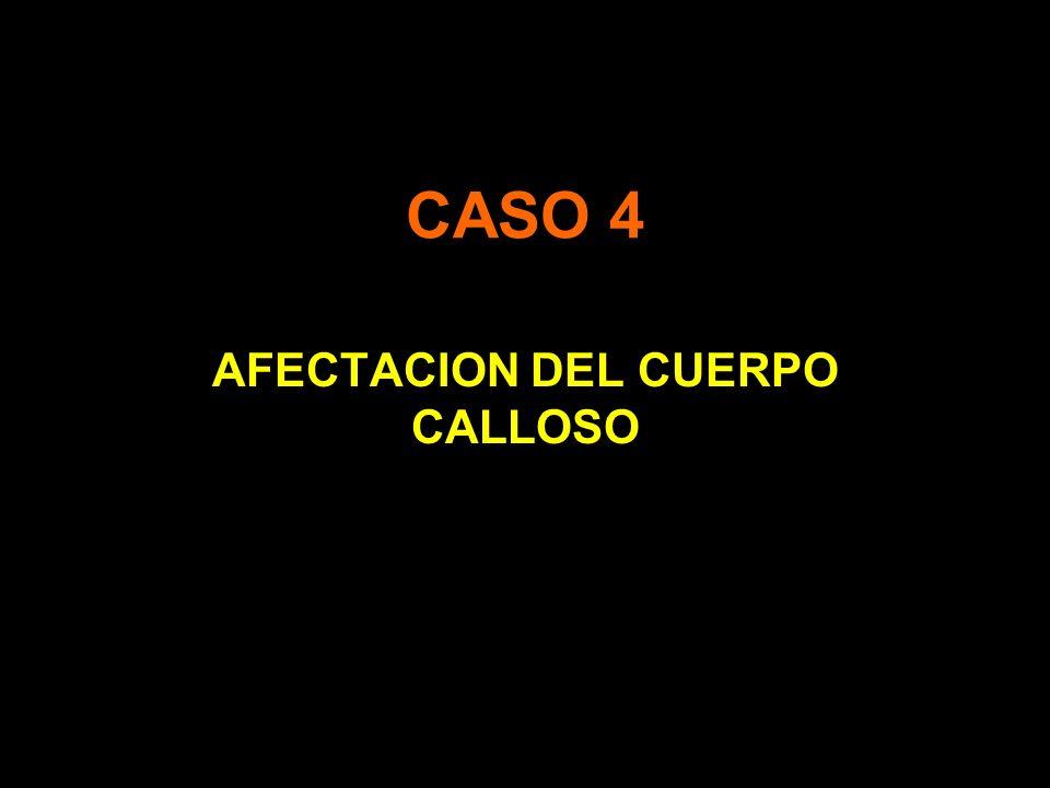 AFECTACION DEL CUERPO CALLOSO