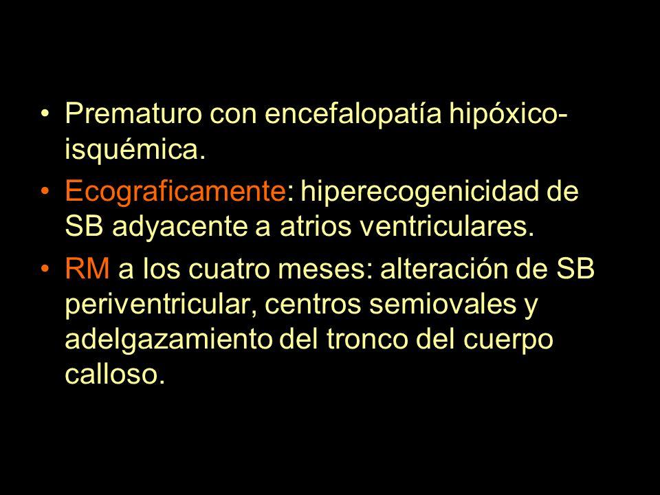 Prematuro con encefalopatía hipóxico-isquémica.