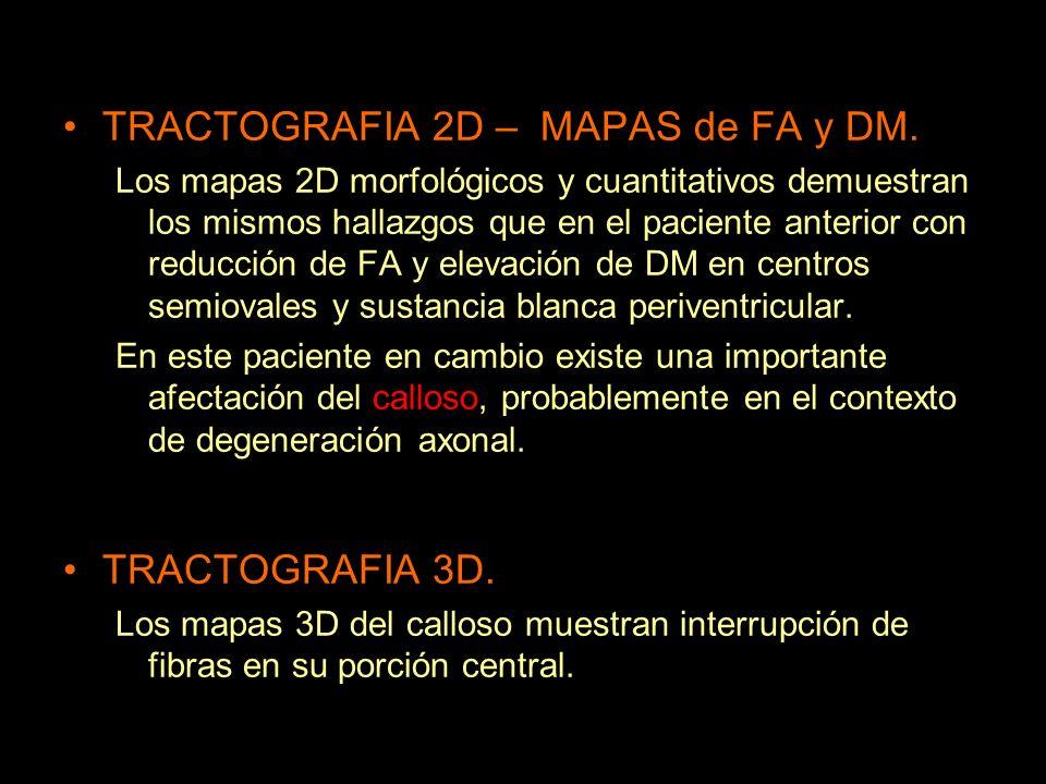 TRACTOGRAFIA 2D – MAPAS de FA y DM.