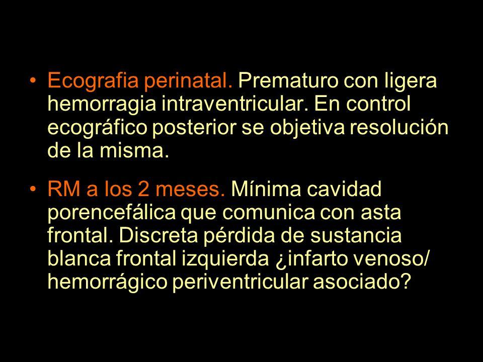 Ecografia perinatal. Prematuro con ligera hemorragia intraventricular
