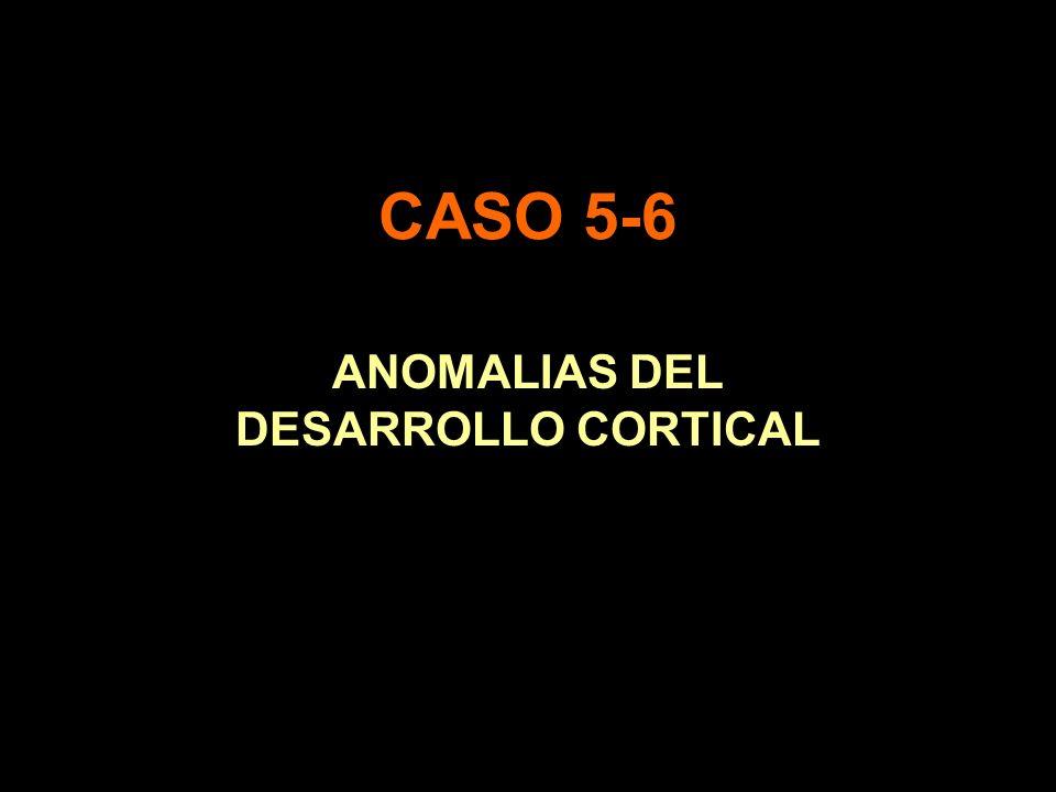ANOMALIAS DEL DESARROLLO CORTICAL