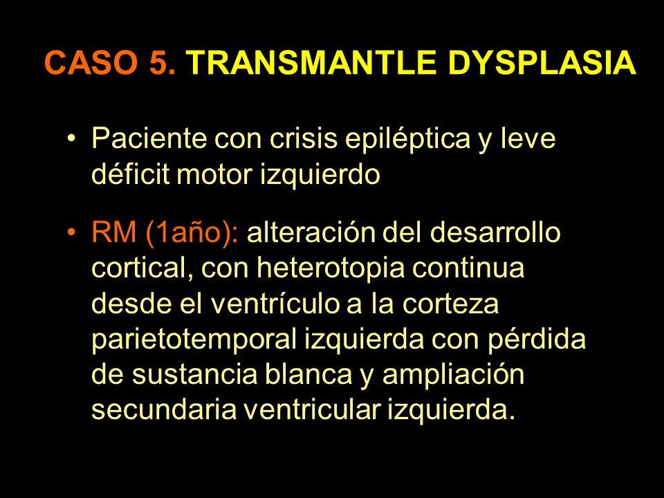 CASO 5. TRANSMANTLE DYSPLASIA