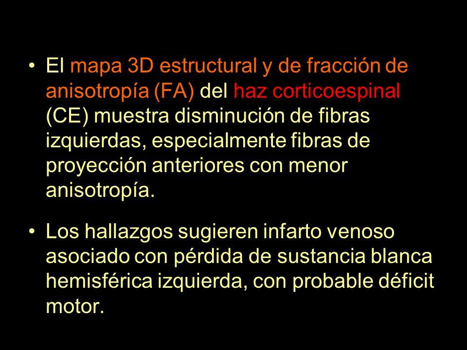 El mapa 3D estructural y de fracción de anisotropía (FA) del haz corticoespinal (CE) muestra disminución de fibras izquierdas, especialmente fibras de proyección anteriores con menor anisotropía.