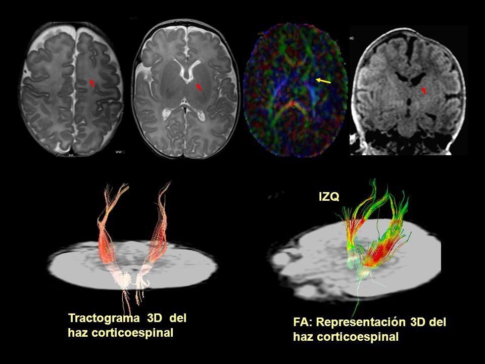 IZQ Tractograma 3D del haz corticoespinal FA: Representación 3D del haz corticoespinal