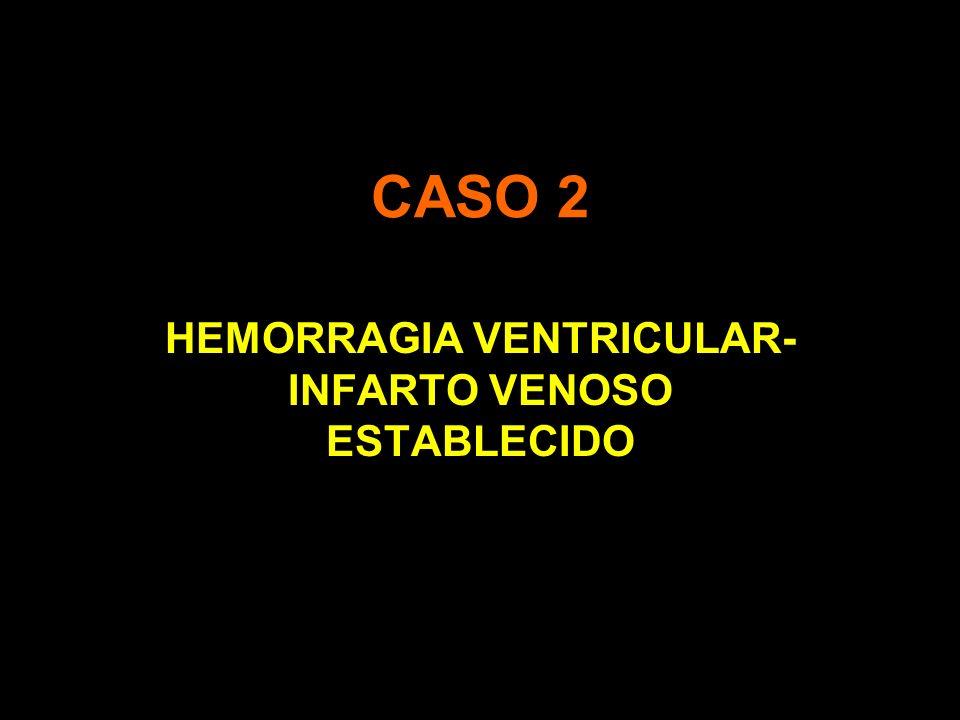 HEMORRAGIA VENTRICULAR-INFARTO VENOSO ESTABLECIDO