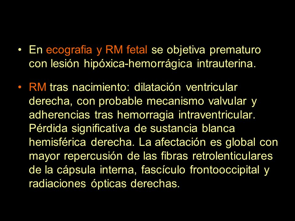 En ecografia y RM fetal se objetiva prematuro con lesión hipóxica-hemorrágica intrauterina.