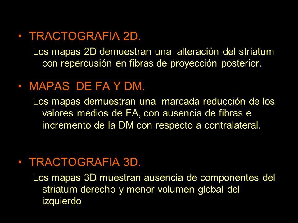 TRACTOGRAFIA 2D. MAPAS DE FA Y DM. TRACTOGRAFIA 3D.