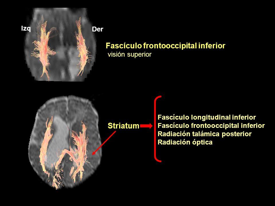 Fascículo frontooccipital inferior