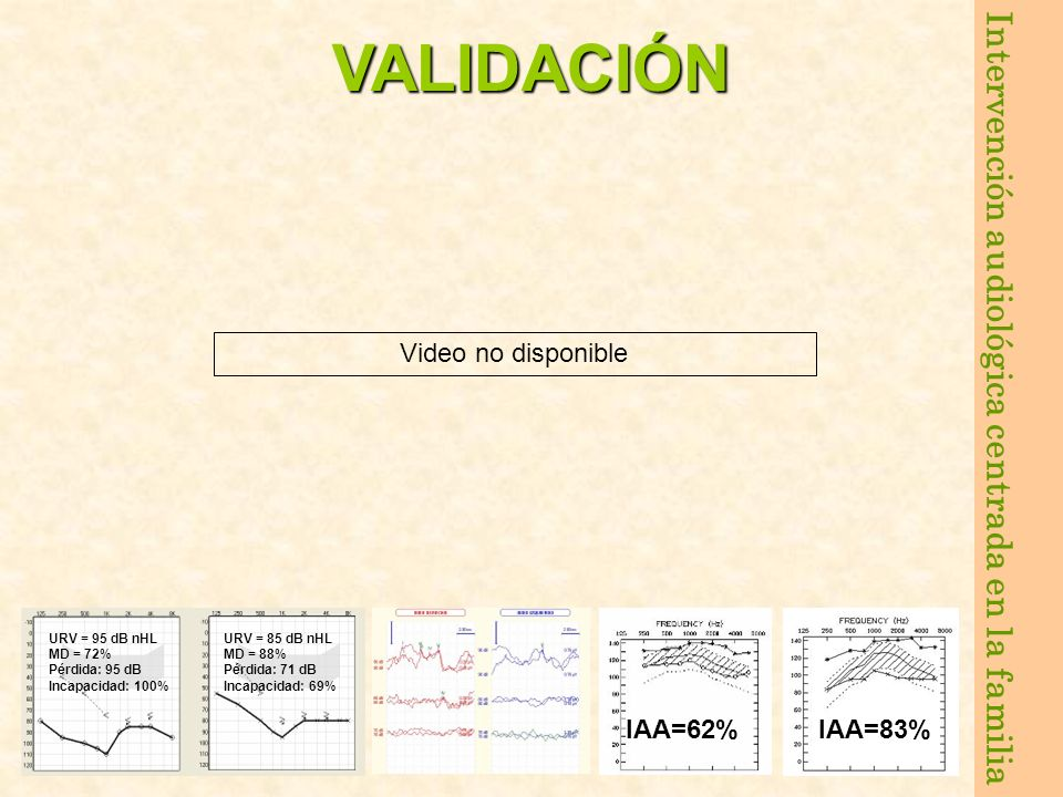 VALIDACIÓN Video no disponible IAA=62% IAA=83% URV = 95 dB nHL
