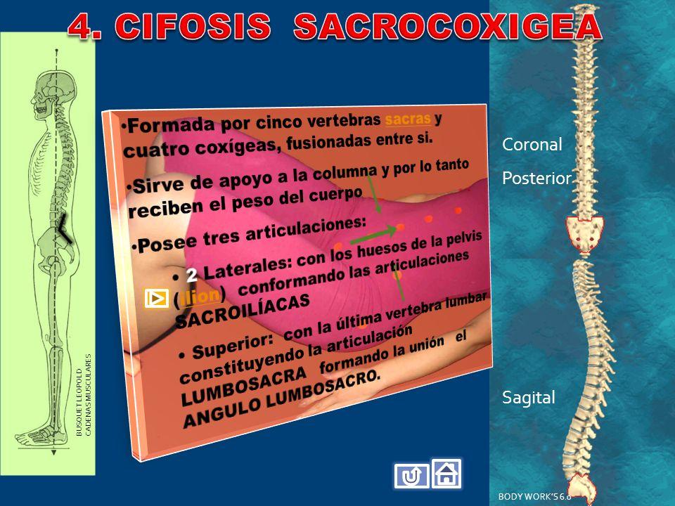 4. CIFOSIS SACROCOXIGEA Coronal Posterior Sagital