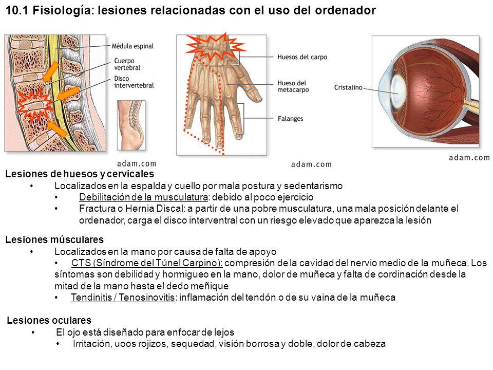 10.1 Fisiología: lesiones relacionadas con el uso del ordenador