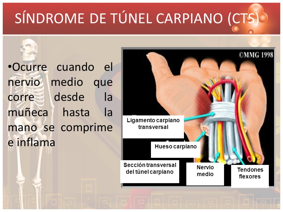 Ligamento carpiano transversal Sección transversal del túnel carpiano