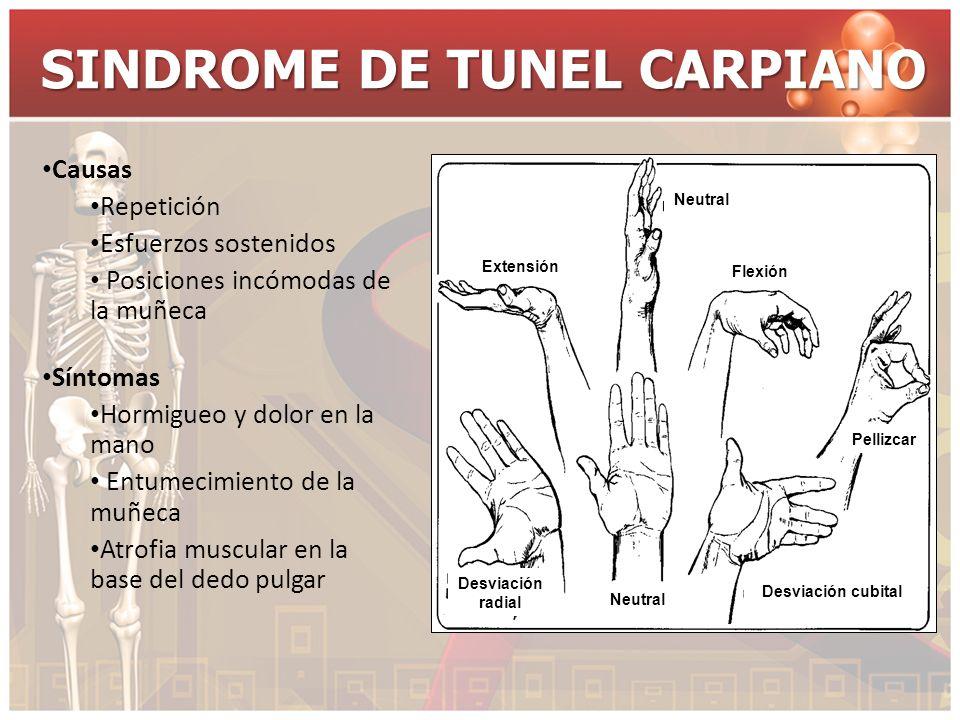 SINDROME DE TUNEL CARPIANO