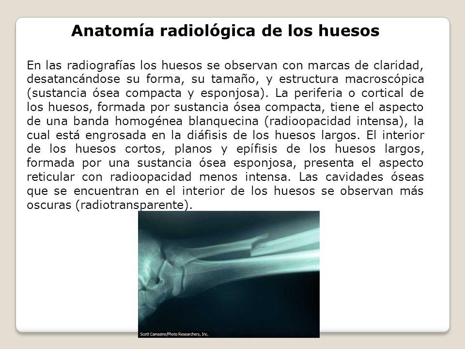 Anatomía radiológica de los huesos