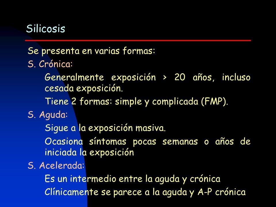 Silicosis Se presenta en varias formas: S. Crónica: