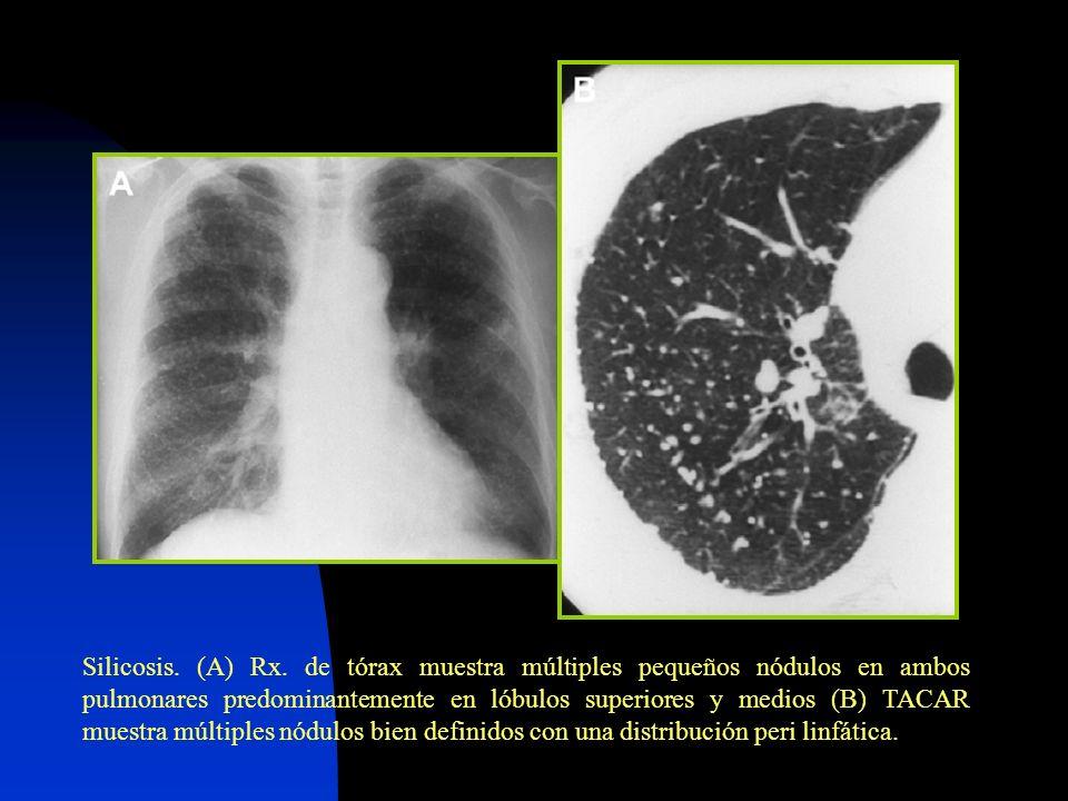 Silicosis. (A) Rx.