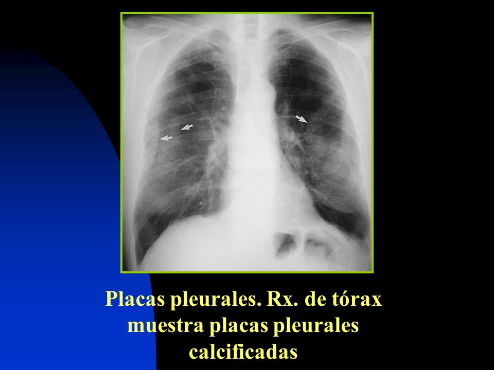 Placas pleurales. Rx. de tórax muestra placas pleurales calcificadas