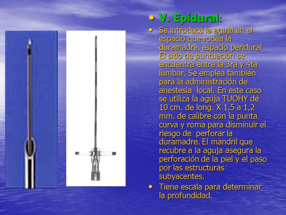 V. Epidural: