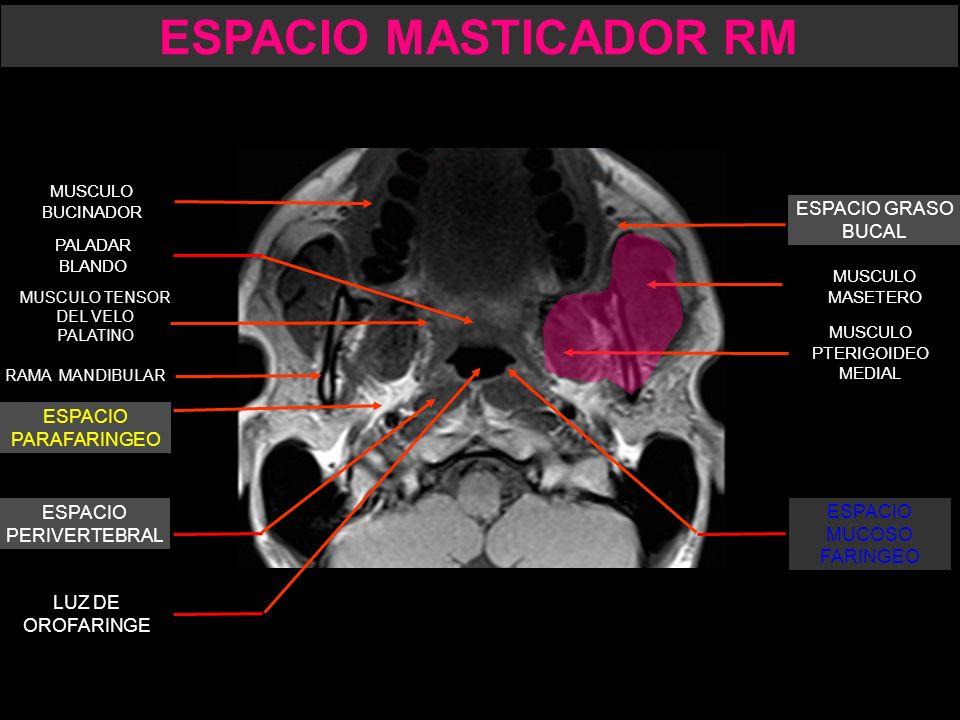 Dorable Anatomía Parafaríngea Foto - Anatomía de Las Imágenesdel ...