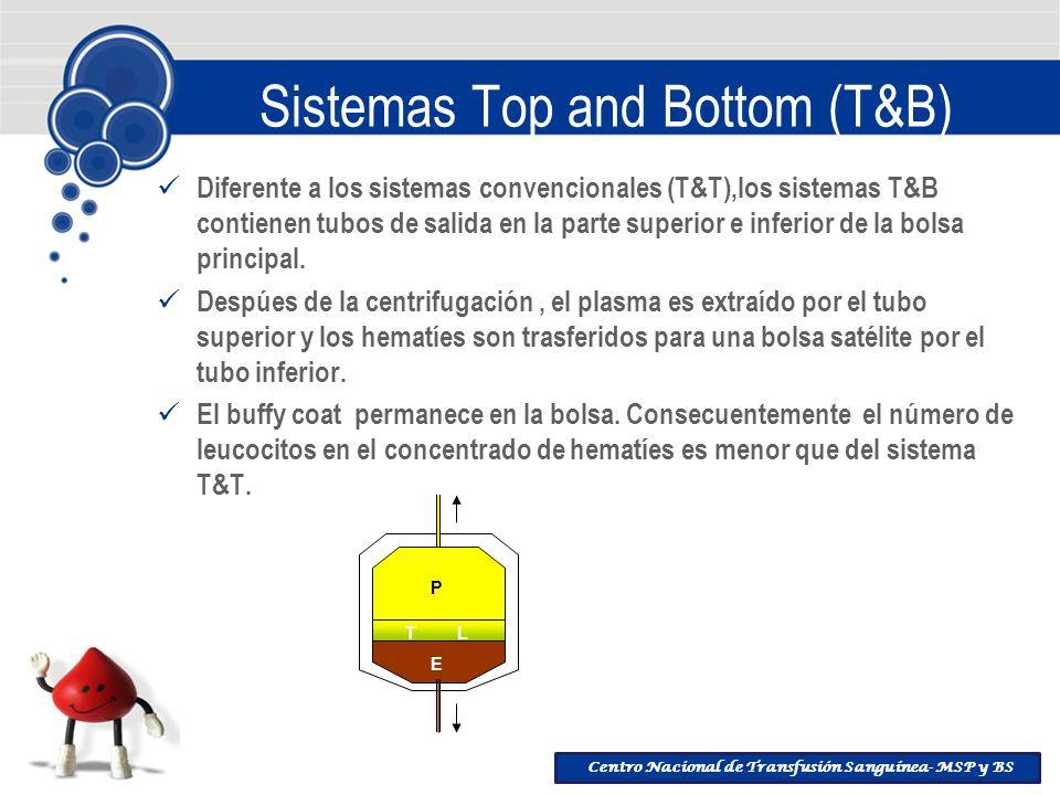 Sistemas Top and Bottom (T&B)