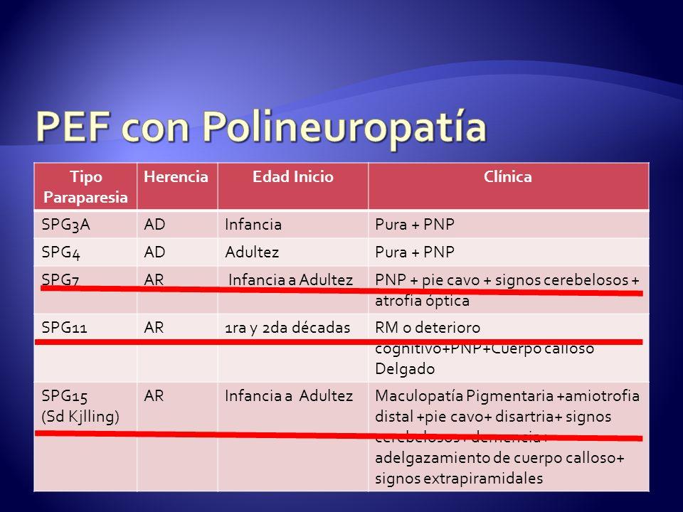 PEF con Polineuropatía
