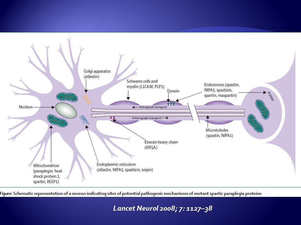 Lancet Neurol 2008; 7: 1127–38