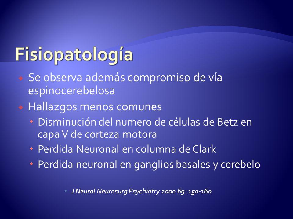 Fisiopatología Se observa además compromiso de vía espinocerebelosa